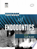 Text Book of Endodontics