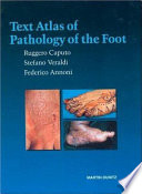 Text atlas of pathology of the foot ( Testo atlante di patologia del piede)
