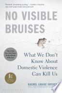No Visible Bruises image